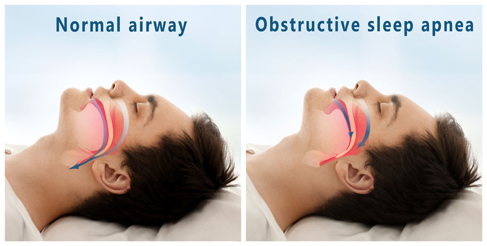 Side by side images of same man sleeping, one depicting normal airway and the other showing obstructive sleep apnea